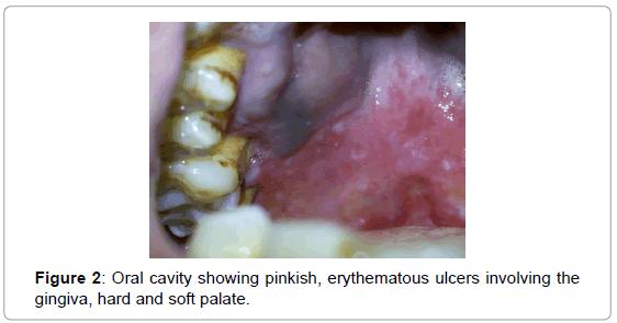 cytology-histology-oral-cavity-pinkish