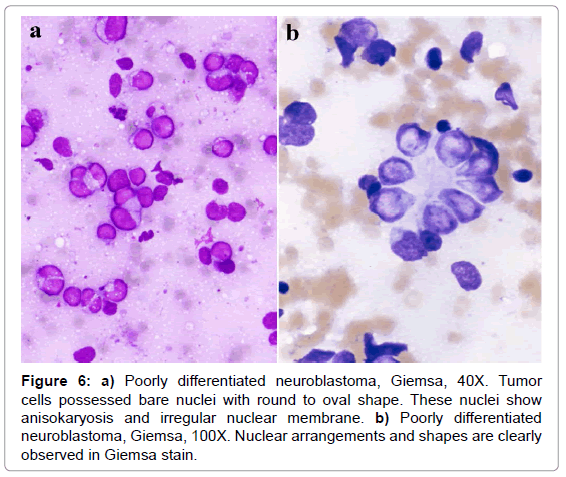 cytology-histology-poorly-differentiated-giemsa