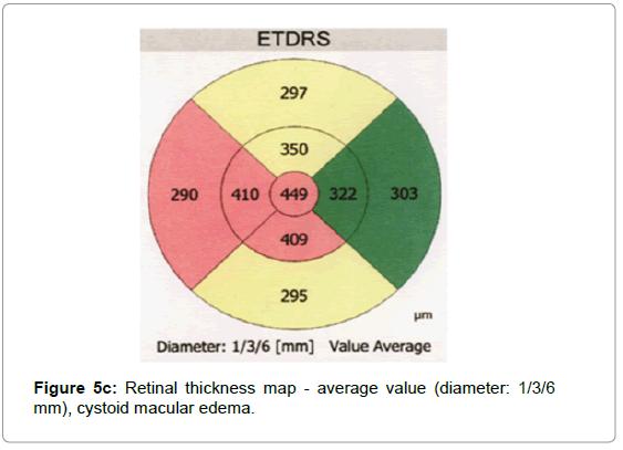 cytology-histology-retinal-map-average-value