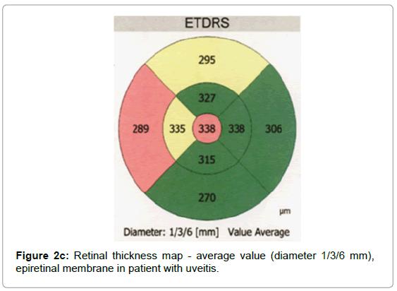 cytology-histology-retinal-map-epiretinal-uveitis