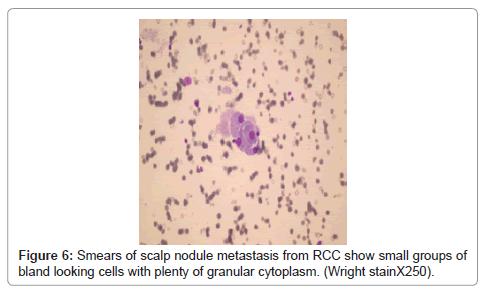 cytology-histology-scalp-nodule