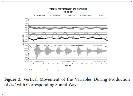 deaf-studies-Corresponding-Sound-Wave