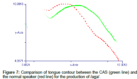 deaf-studies-hearing-Comparison-tongue-contour