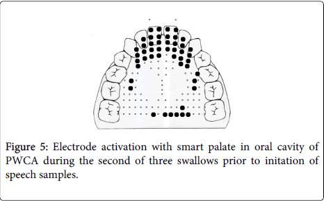 deaf-studies-hearing-aids-Electrode-activation