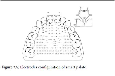 deaf-studies-hearing-aids-Electrodes-configuration