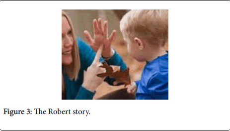 deaf-studies-hearing-aids-Robert-story