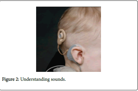 deaf-studies-hearing-aids-Understanding-sounds