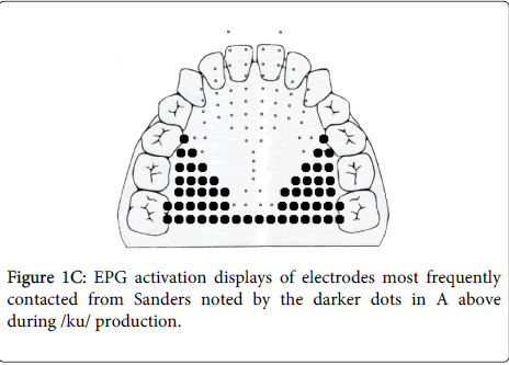 deaf-studies-hearing-aids-darker-dots