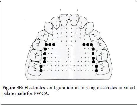 deaf-studies-hearing-aids-missing-electrodes