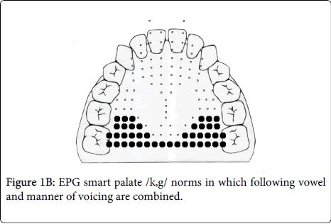 deaf-studies-hearing-aids-smart-palate