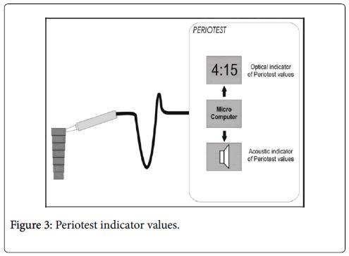 dental-implants-dentures-Periotest-indicator-values