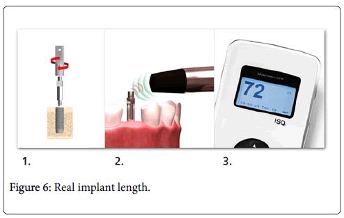 dental-implants-dentures-Real-implant-length
