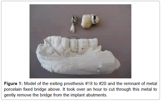 dental-implants-dentures-exiting-prosthesis-porcelain