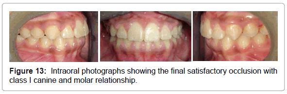 dental-implants-dentures-intraoral-photographs