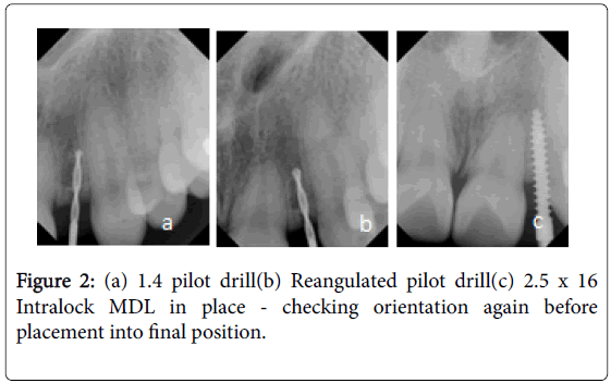dental-implants-dentures-pilot-drill-reangulated