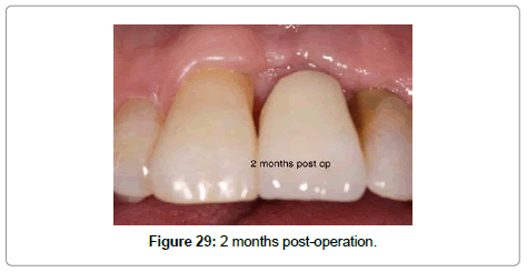 dentistry-2-months-post-operation
