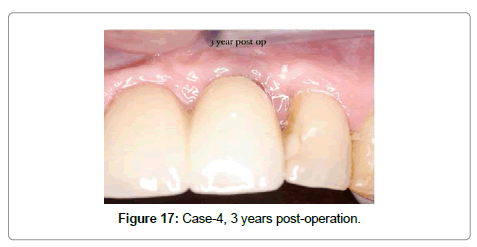 dentistry-3-years-post-operation