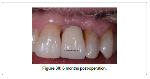 dentistry-6-months-post-operation