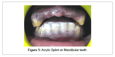 dentistry-Acrylic-Splint
