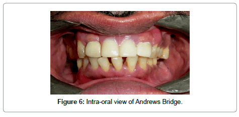 dentistry-Andrews-Bridge