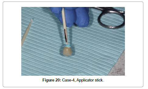 dentistry-Applicator-stick