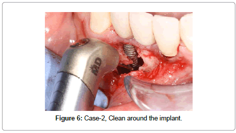 dentistry-Clean-around-the-implant