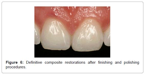 dentistry-Definitive-composite-restorations