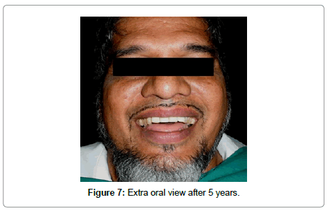 dentistry-Extra-oral-view