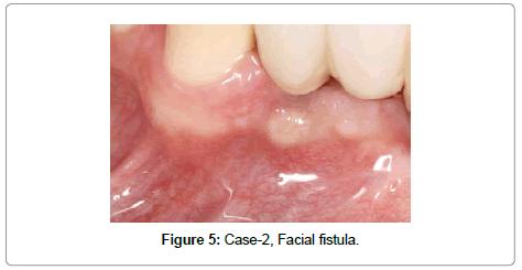 dentistry-Facial-fistula