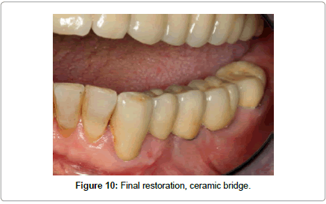 dentistry-Final-restoration