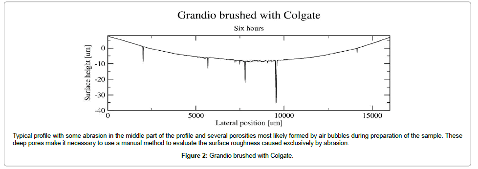 dentistry-Grandio-brushed-Colgate
