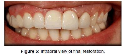 dentistry-Intraoral-final-restoration