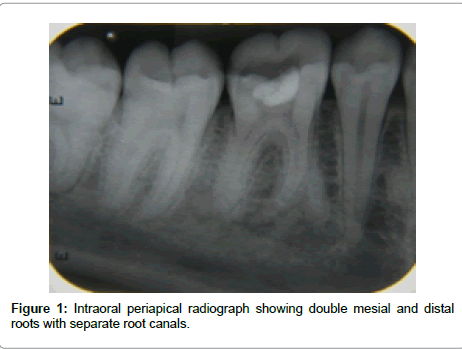 dentistry-Intraoral-periapical