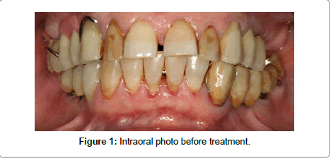 dentistry-Intraoral-photo