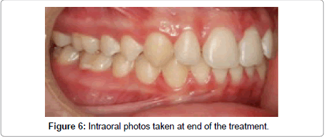 dentistry-Intraoral-treatment