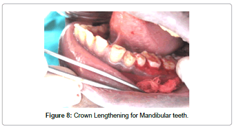 dentistry-Mandibular-teeth