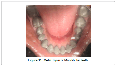 dentistry-Metal-try-in-mandibular-teeth