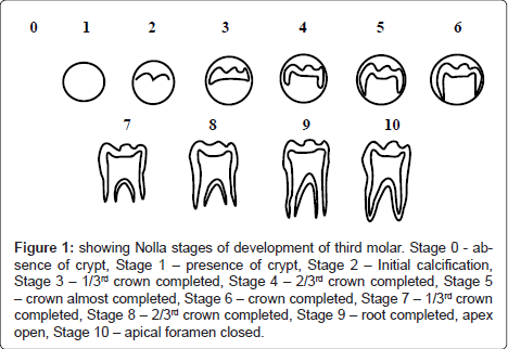 dentistry-Nolla-stages