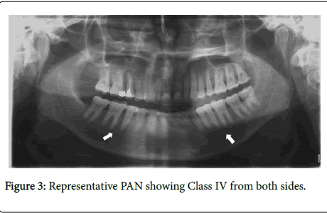 dentistry-PAN-showing