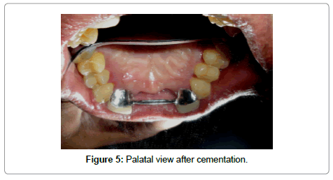 dentistry-Palatal-view