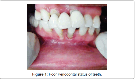 dentistry-Poor-Periodontal