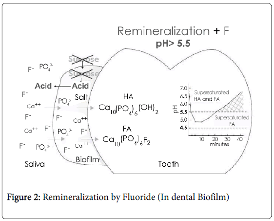 dentistry-Remineralization-Fluoride
