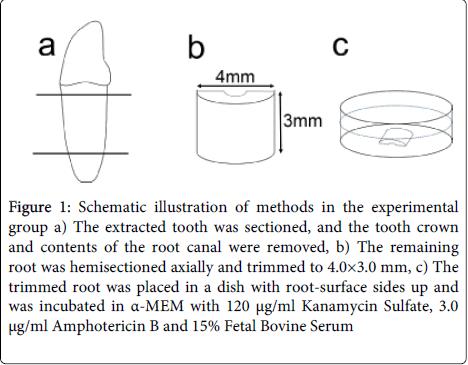 dentistry-Schematic-illustration