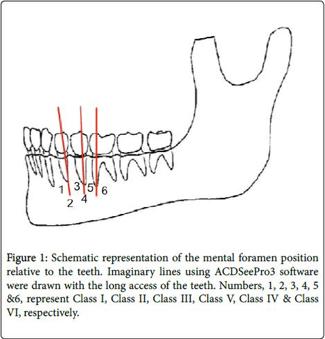 dentistry-Schematic-representation