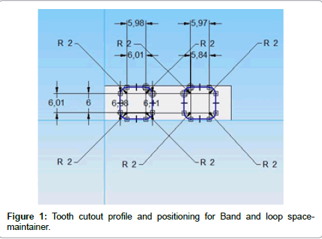 dentistry-Tooth-cutout