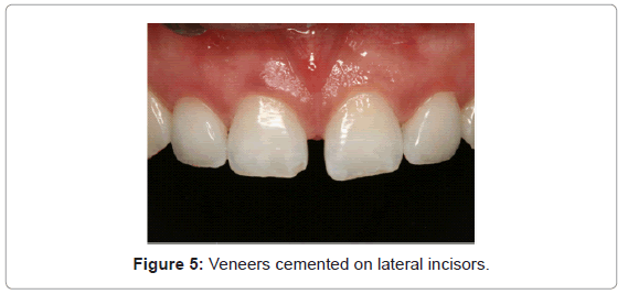 dentistry-Veneers-cemented-lateral-incisors