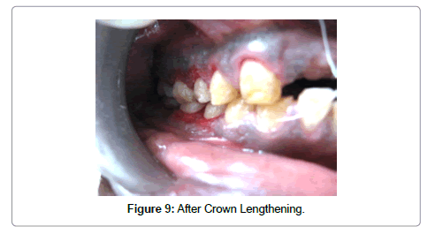 dentistry-after-Crown-lengthening