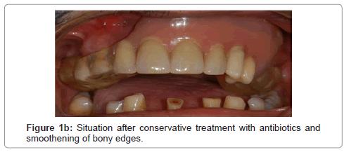 dentistry-after-conservative