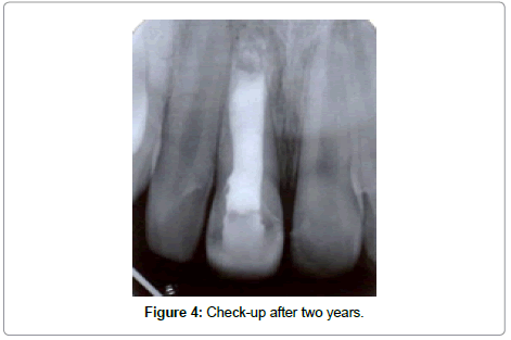 dentistry-after-two-year