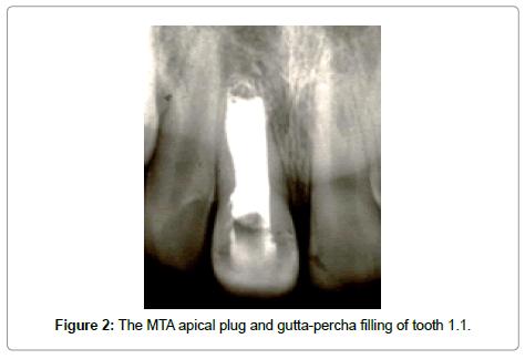 dentistry-apical-plug